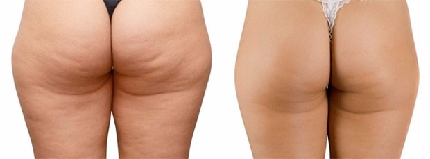 anti-celulitis-tratamiento-eliminar-celulitis-piel-naranja-D_NQ_NP_830815-MLC25301793073_012017-F